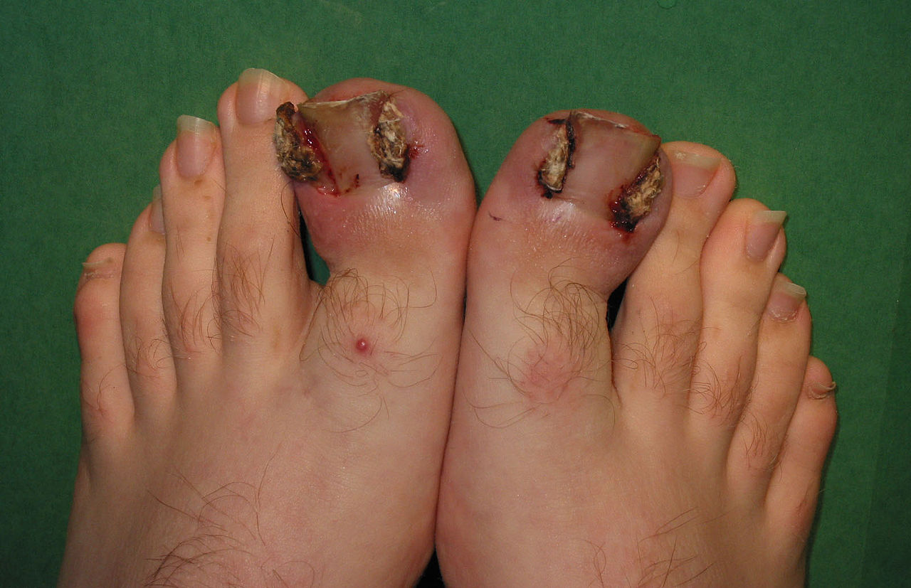 The Ingrown Nail - What to do about ingrown toenails - Dr. Collard